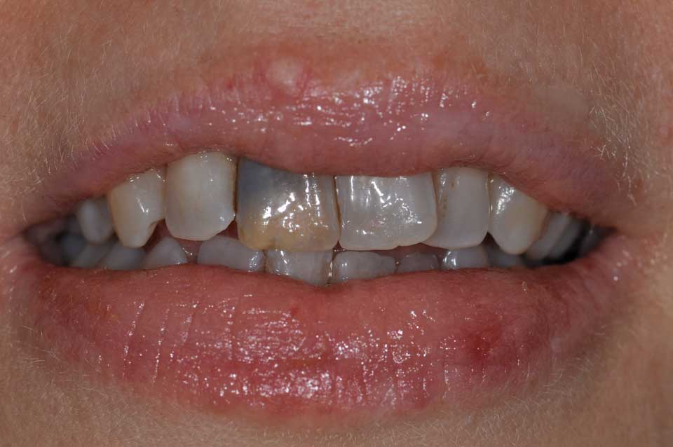 Before crowns image discolored tooth in a smile