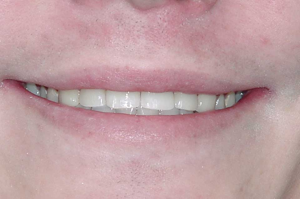 After Crowns image of a patient's smile
