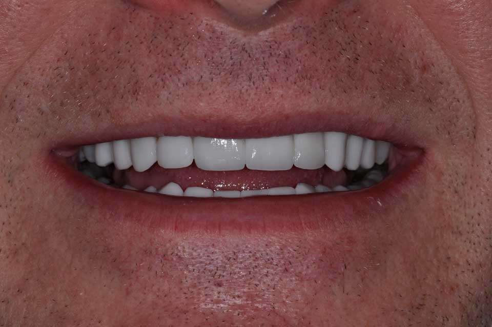 After Crowns & Veneers image of a patient's smile