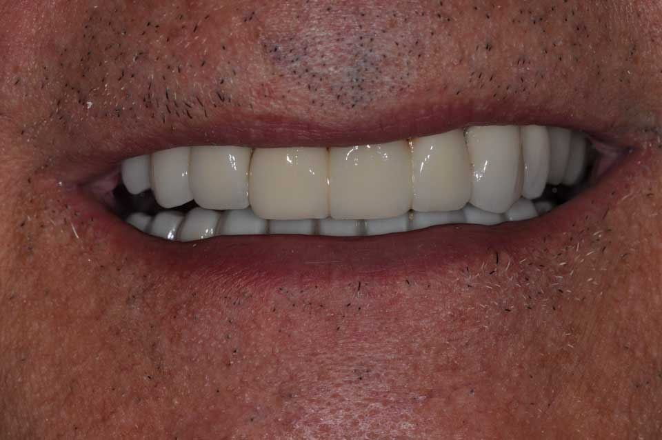 After Crowns & implants image of a patient's smile