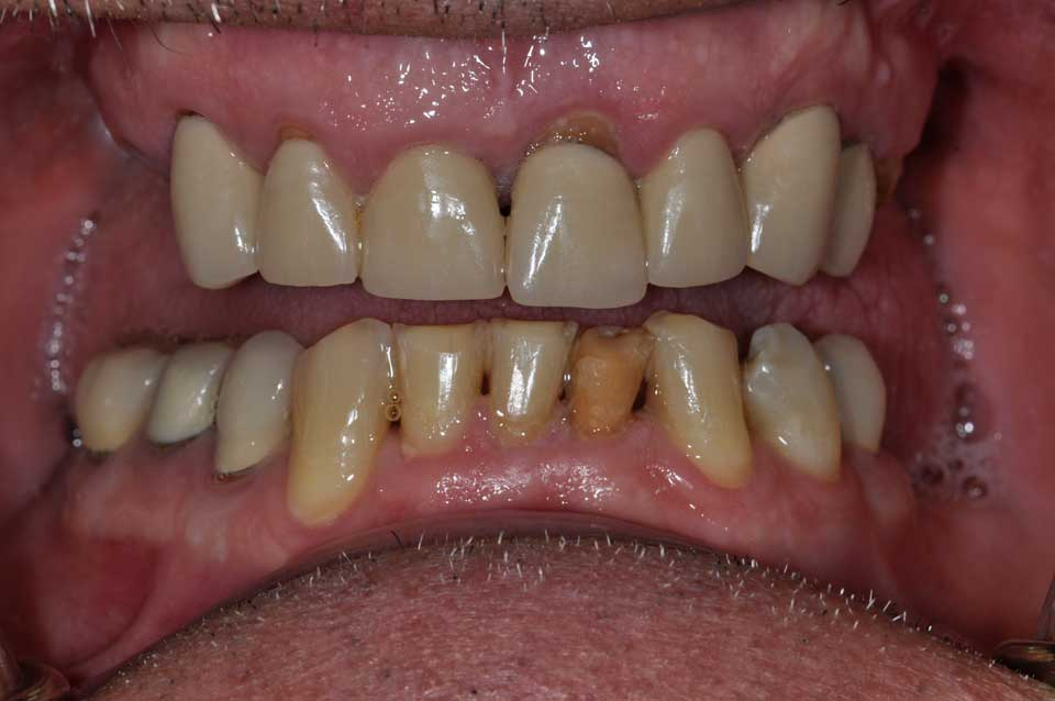 Before Crowns & implants image of a patient's smile