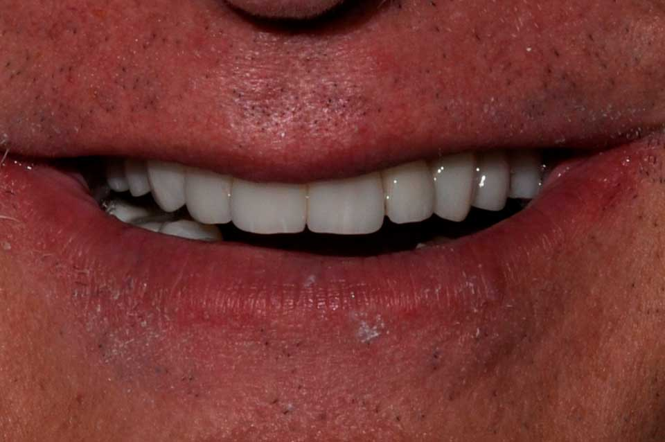 After Crowns, implants & bridges image of a patient's smile