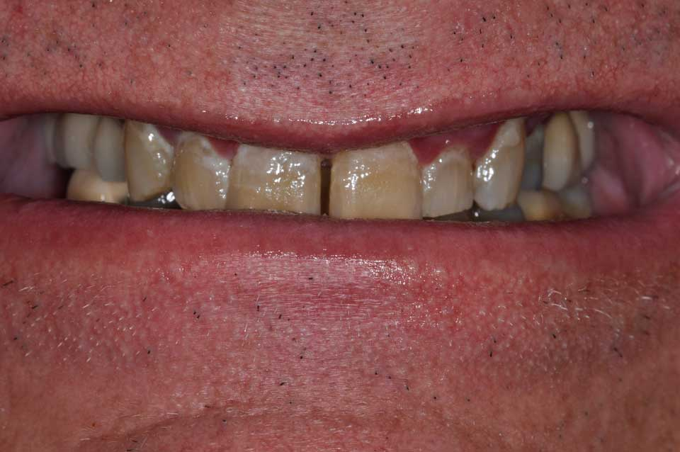 Before Crowns, implants & bridges image of a patient's smile