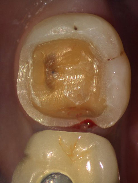 Sensitive decayed tooth of a patient before crown