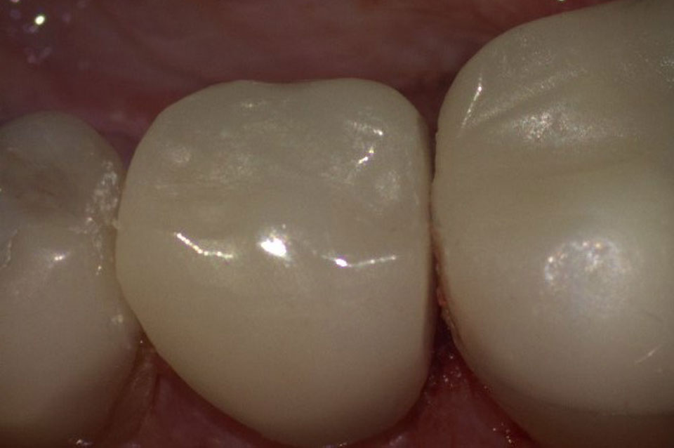 Restoration of tooth with CEREC technology