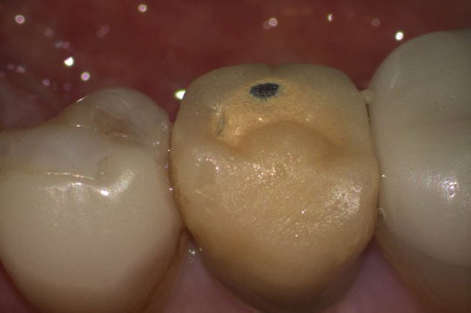 Old restoration and discoloration in tooth before crowns