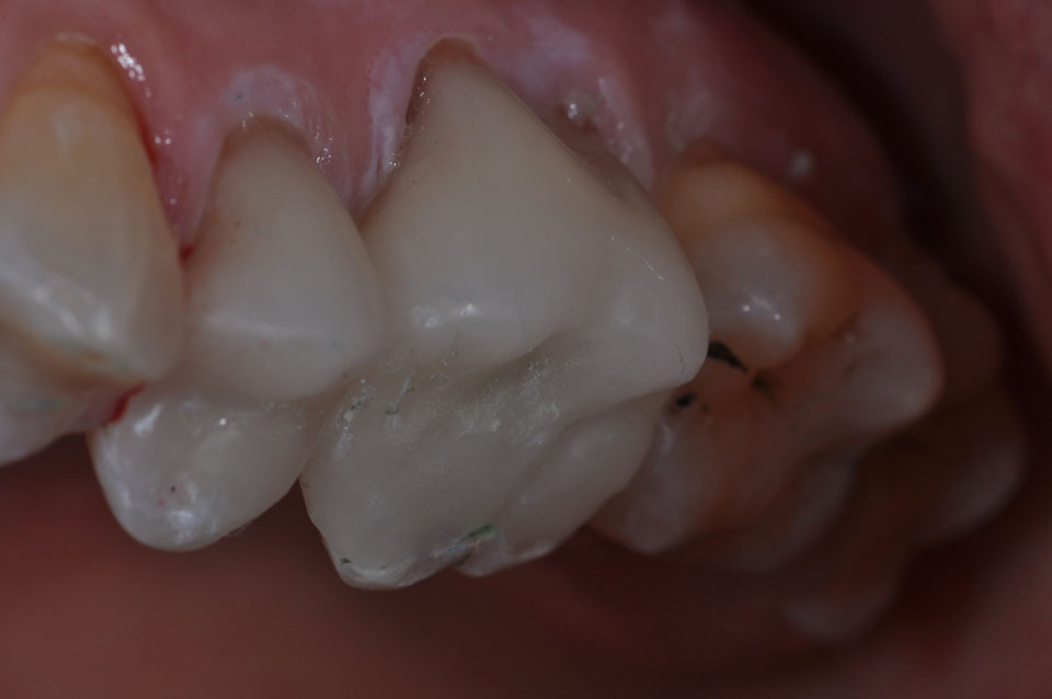 After CEREC Crowns image of a patient's teeth