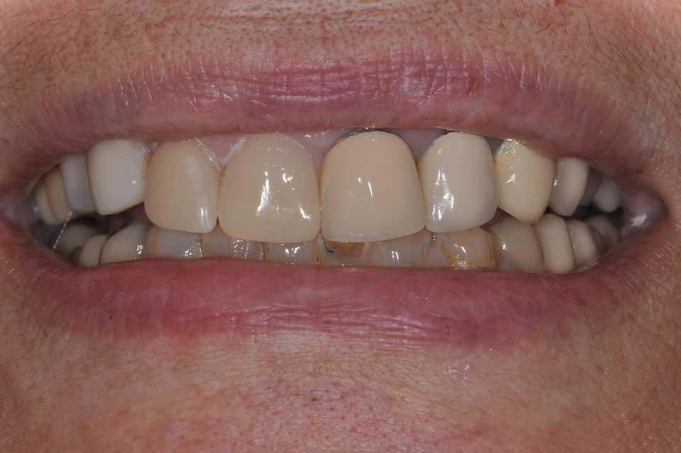 Smile of the patient after CEREC crown placement