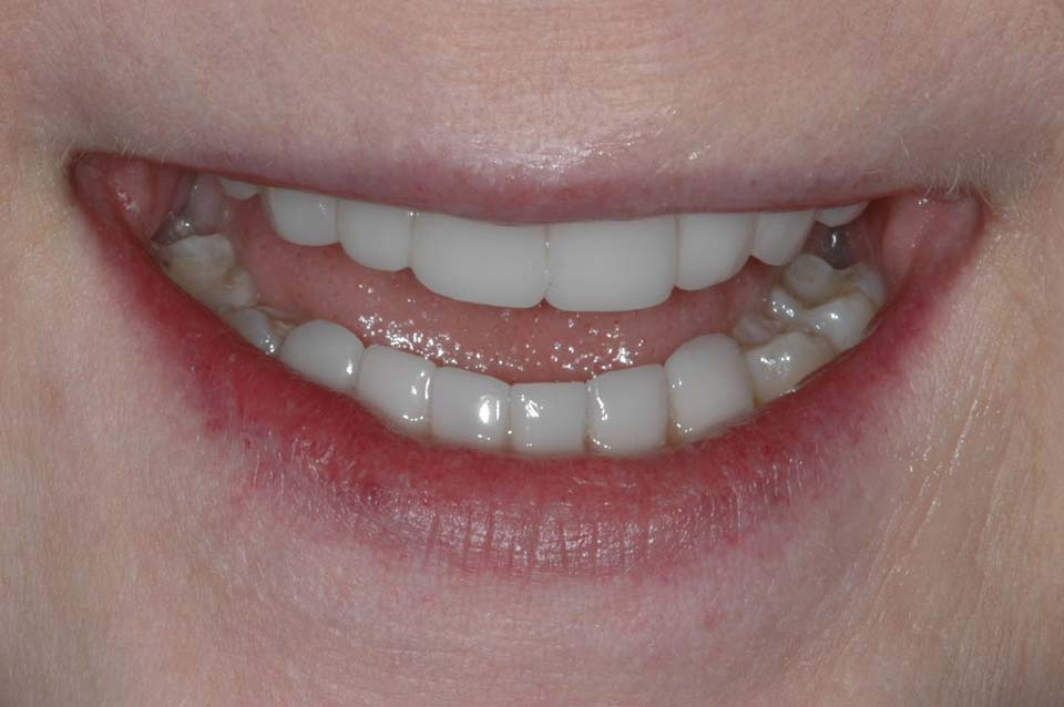 Veneers After Smile