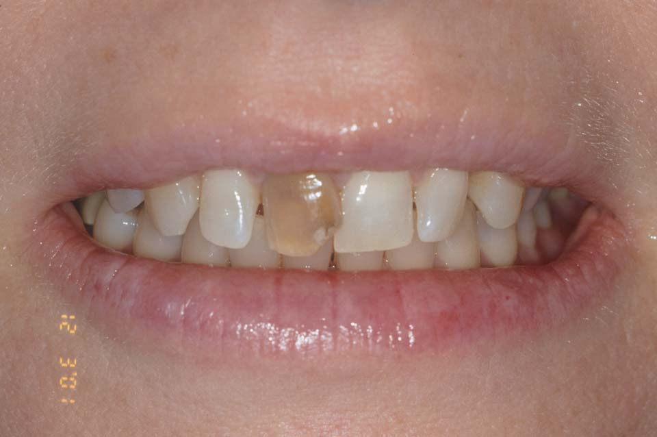 Veneers Before Smile