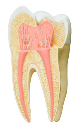 Can Fluorosis Stains Be Removed?