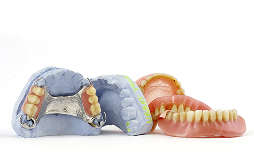 Dentures and lab molds