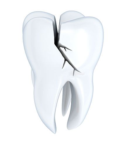 Signs You May Have a Tooth Broken Below the Gumline